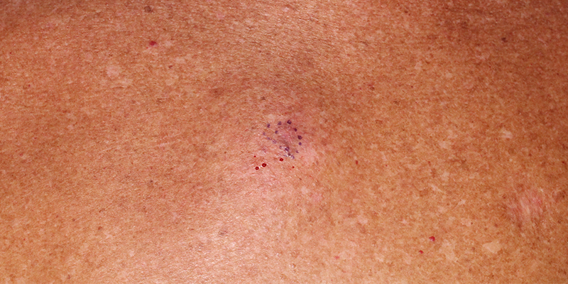 Melanoma-Insitu-Of-The-Back-Skin-Cancer-Specialists-Skin-Cancer-and-Reconstructive-Surgery-Center-Orange-County