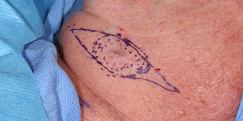 Metatypical-Basal-Cell-Carcinoma-Neck-Skin-Cancer-Specialists-Skin-Cancer-and-Reconstructive-Surgery-Center-Orange-County