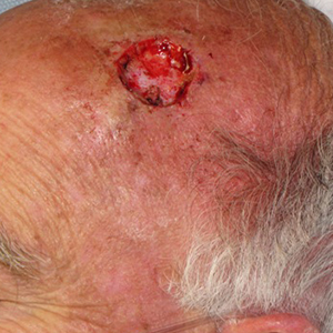 Scalp-Reconstruction-After-Skin-Cancer-Excision-Skin-Cancer-And-Reconstructive-Surgery-Center-Newport-Beach-Orange-County (1)
