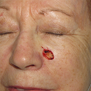 Scalp-Reconstruction-After-Skin-Cancer-Excision-Skin-Cancer-And-Reconstructive-Surgery-Center-Newport-Beach-Orange-County (2)