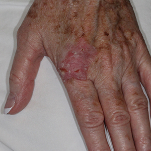 body-Reconstruction-After-Skin-Cancer-Excision-Skin-Cancer-And-Reconstructive-Surgery-Center-Newport-Beach-Orange-County (3)
