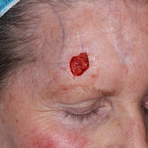 forehead-Reconstruction-After-Skin-Cancer-Excision-Skin-Cancer-And-Reconstructive-Surgery-Center-Newport-Beach-Orange-County (4)