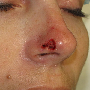nose-Reconstruction-After-Skin-Cancer-Excision-Skin-Cancer-And-Reconstructive-Surgery-Center-Newport-Beach-Orange-County (6)