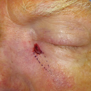 eyelid-Reconstruction-After-Skin-Cancer-Excision-Skin-Cancer-And-Reconstructive-Surgery-Center-Newport-Beach-Orange-County (7)