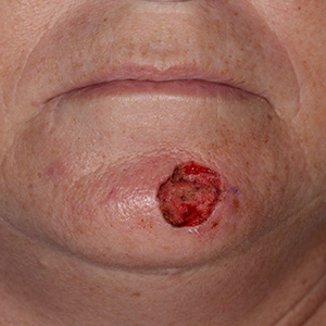 chin-Reconstruction-After-Skin-Cancer-Excision-Skin-Cancer-And-Reconstructive-Surgery-Center-Newport-Beach-Orange-County (8)