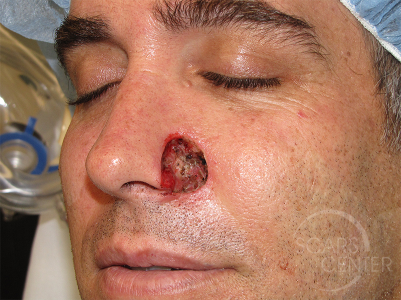 Nose Reconstruction 2 Skin Cancer And Reconstructive Surgery Center
