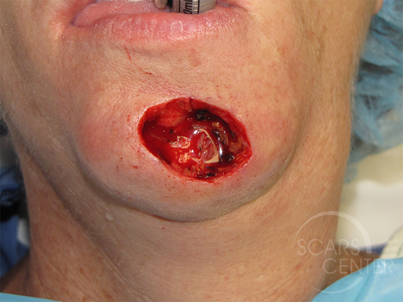 Skin-Cancer-And-Reconstructive-Surgery-Center-Skin-Cancer-Specialists-Intraoperative-Photos-WM-1