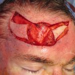 Forehead Reconstruction 1