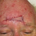 Forehead Reconstruction 4