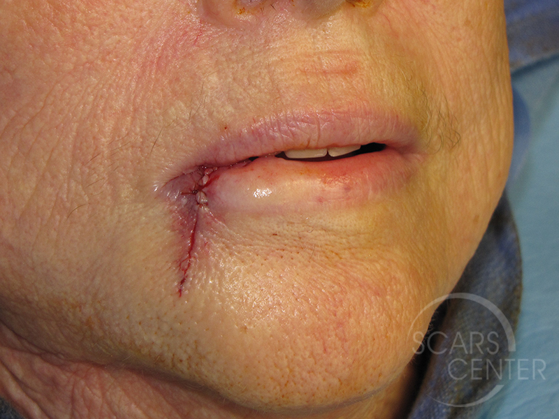 Skin-Cancer-And-Reconstructive-Surgery-Center-Skin-Cancer-Specialists-Intraoperative-Photos-WM-2