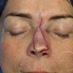 Nose Reconstruction 6