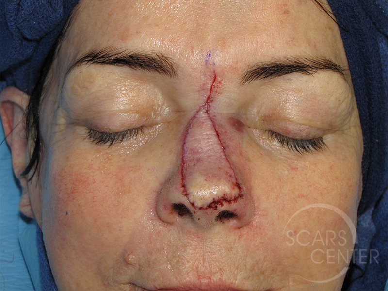 Nose Reconstruction 6 Skin Cancer And Reconstructive Surgery Center