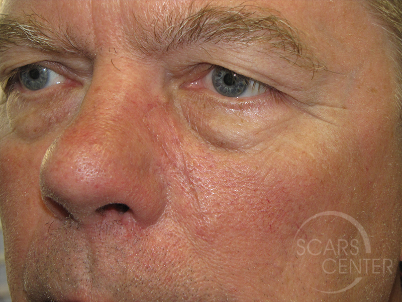 Skin-Cancer-And-Reconstructive-Surgery-Center-Skin-Cancer-Specialists-Intraoperative-Photos-WM-4