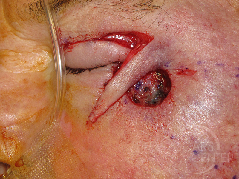 Skin-Cancer-And-Reconstructive-Surgery-Center-Skin-Cancer-Specialists-Intraoperative-Photos-WM-4jpg