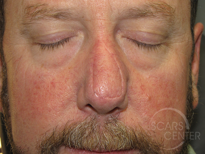 Skin-Cancer-And-Reconstructive-Surgery-Center-Skin-Cancer-Specialists-Intraoperative-Photos-WM-5
