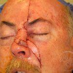 Nose Reconstruction 7
