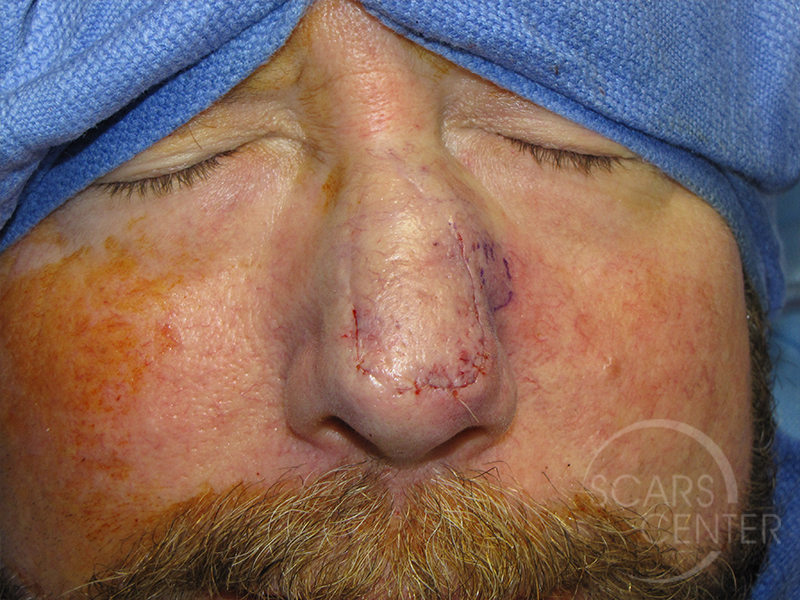 Skin-Cancer-And-Reconstructive-Surgery-Center-Skin-Cancer-Specialists-Intraoperative-Photos-WM-6
