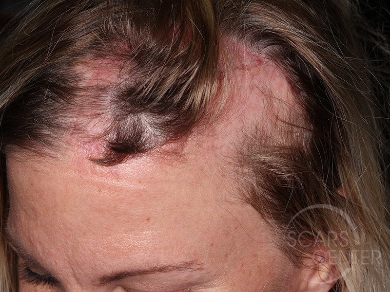 Skin-Cancer-And-Reconstructive-Surgery-Center-Skin-Cancer-Specialists-Intraoperative-Photos-WM-7