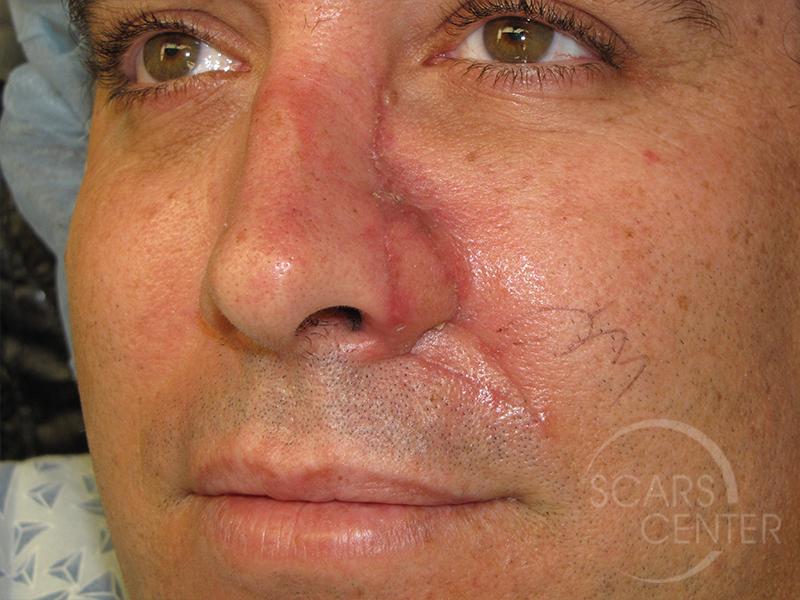 Skin Cancer Specialists Dobo