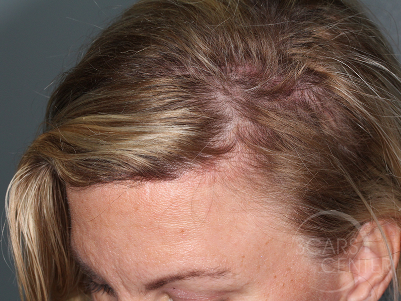 Skin-Cancer-And-Reconstructive-Surgery-Center-Skin-Cancer-Specialists-Intraoperative-Photos-WM-8