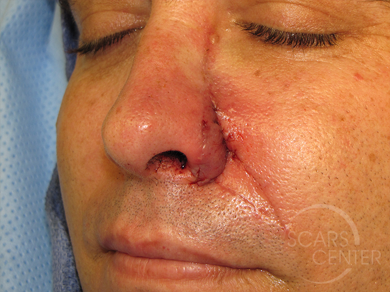 Skin-Cancer-And-Reconstructive-Surgery-Center-Skin-Cancer-Specialists-Intraoperative-Photos-WM-9