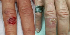 Skin-Cancer-And-Reconstructive-Surgery-Center-Skin-Cancer-Specialists-Reconstructive-Before-And-After-Body-Cancer (2)