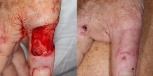Skin-Cancer-And-Reconstructive-Surgery-Center-Skin-Cancer-Specialists-Reconstructive-Before-And-After-Body-Cancer (3)