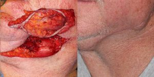 Skin-Cancer-And-Reconstructive-Surgery-Center-Skin-Cancer-Specialists-Reconstructive-Before-And-After-Body-Cancer (4)