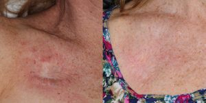 Skin-Cancer-And-Reconstructive-Surgery-Center-Skin-Cancer-Specialists-Reconstructive-Before-And-After-Body-Cancer (6)