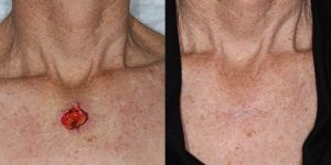 Skin-Cancer-And-Reconstructive-Surgery-Center-Skin-Cancer-Specialists-Reconstructive-Before-And-After-Body-Cancer (7)