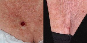 Skin-Cancer-And-Reconstructive-Surgery-Center-Skin-Cancer-Specialists-Reconstructive-Before-And-After-Body-Cancer (8)