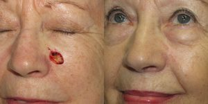 Skin-Cancer-And-Reconstructive-Surgery-Center-Skin-Cancer-Specialists-Reconstructive-Before-And-After-Cheek-Cancer (2)