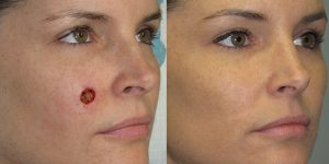 Skin-Cancer-And-Reconstructive-Surgery-Center-Skin-Cancer-Specialists-Reconstructive-Before-And-After-Cheek-Cancer (5)