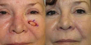 Skin-Cancer-And-Reconstructive-Surgery-Center-Skin-Cancer-Specialists-Reconstructive-Before-And-After-Cheek-Cancer (6)