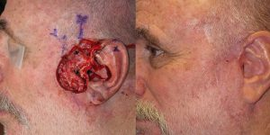 Skin-Cancer-And-Reconstructive-Surgery-Center-Skin-Cancer-Specialists-Reconstructive-Before-And-After-Cheek-Cancer (7)