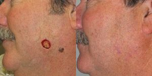 Skin-Cancer-And-Reconstructive-Surgery-Center-Skin-Cancer-Specialists-Reconstructive-Before-And-After-Cheek-Cancer (9)