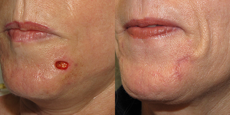 Chin Reconstruction Skin Cancer And Reconstructive Surgery Center
