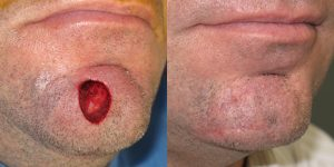 Skin-Cancer-And-Reconstructive-Surgery-Center-Skin-Cancer-Specialists-Reconstructive-Before-And-After-Chin-Cancer (11)