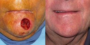 Skin-Cancer-And-Reconstructive-Surgery-Center-Skin-Cancer-Specialists-Reconstructive-Before-And-After-Chin-Cancer (12)
