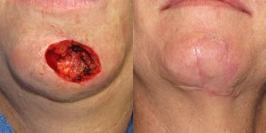 Skin-Cancer-And-Reconstructive-Surgery-Center-Skin-Cancer-Specialists-Reconstructive-Before-And-After-Chin-Cancer (13)