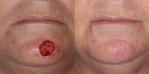 Skin-Cancer-And-Reconstructive-Surgery-Center-Skin-Cancer-Specialists-Reconstructive-Before-And-After-Chin-Cancer (14)