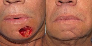 Skin-Cancer-And-Reconstructive-Surgery-Center-Skin-Cancer-Specialists-Reconstructive-Before-And-After-Chin-Cancer (9)