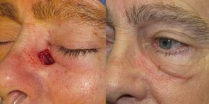 Skin-Cancer-And-Reconstructive-Surgery-Center-Skin-Cancer-Specialists-Reconstructive-Before-And-After-Eyelid-Cancer (10)