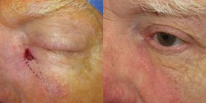 Skin-Cancer-And-Reconstructive-Surgery-Center-Skin-Cancer-Specialists-Reconstructive-Before-And-After-Eyelid-Cancer (11)