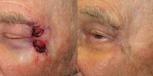 Skin-Cancer-And-Reconstructive-Surgery-Center-Skin-Cancer-Specialists-Reconstructive-Before-And-After-Eyelid-Cancer (12)