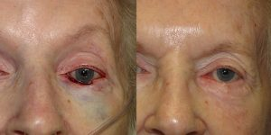 Skin-Cancer-And-Reconstructive-Surgery-Center-Skin-Cancer-Specialists-Reconstructive-Before-And-After-Eyelid-Cancer (13)