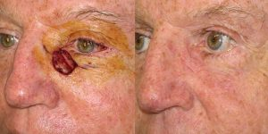 Skin-Cancer-And-Reconstructive-Surgery-Center-Skin-Cancer-Specialists-Reconstructive-Before-And-After-Eyelid-Cancer (14)