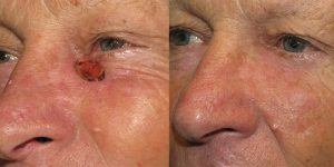 Skin-Cancer-And-Reconstructive-Surgery-Center-Skin-Cancer-Specialists-Reconstructive-Before-And-After-Eyelid-Cancer (15)