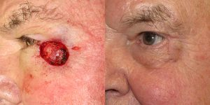 Skin-Cancer-And-Reconstructive-Surgery-Center-Skin-Cancer-Specialists-Reconstructive-Before-And-After-Eyelid-Cancer (15)1