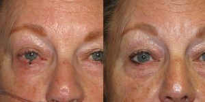 Skin-Cancer-And-Reconstructive-Surgery-Center-Skin-Cancer-Specialists-Reconstructive-Before-And-After-Eyelid-Cancer (9)